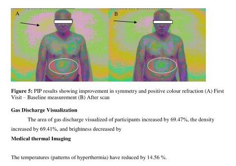 Bodytalk Distance healing study 16
